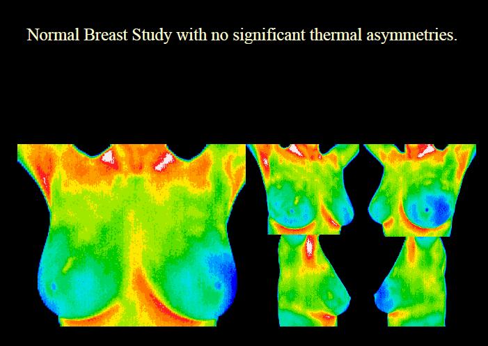 breastscreenprocedure